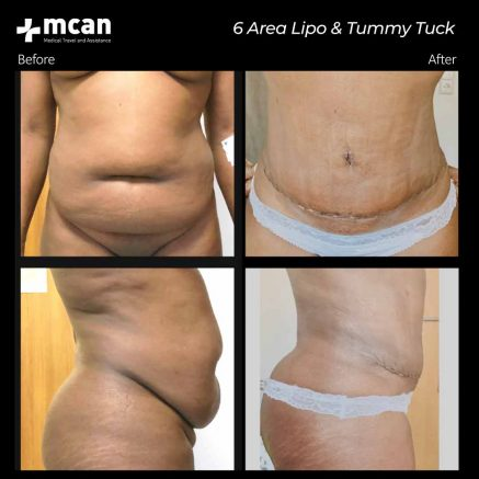 15.10.20-6area-liposuction-tummy-tuck