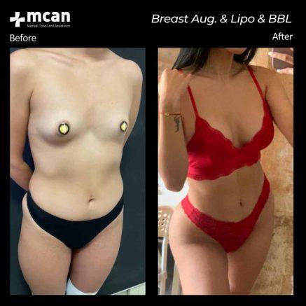 15.10.20-breast-augmentation-liposuction-bbl