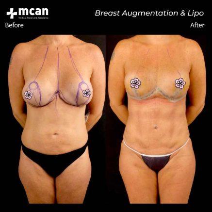 22.10.20-breast-augmentation-liposuction
