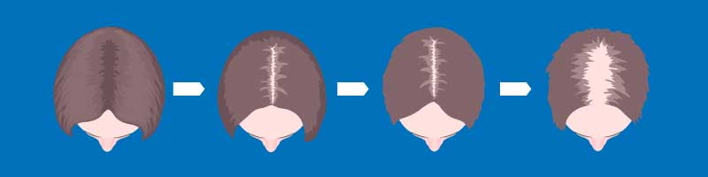 Women's Hair Loss Type