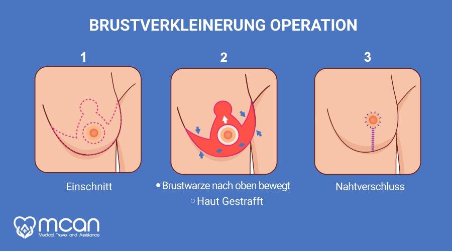 brustverkleinerung-turkei-operation