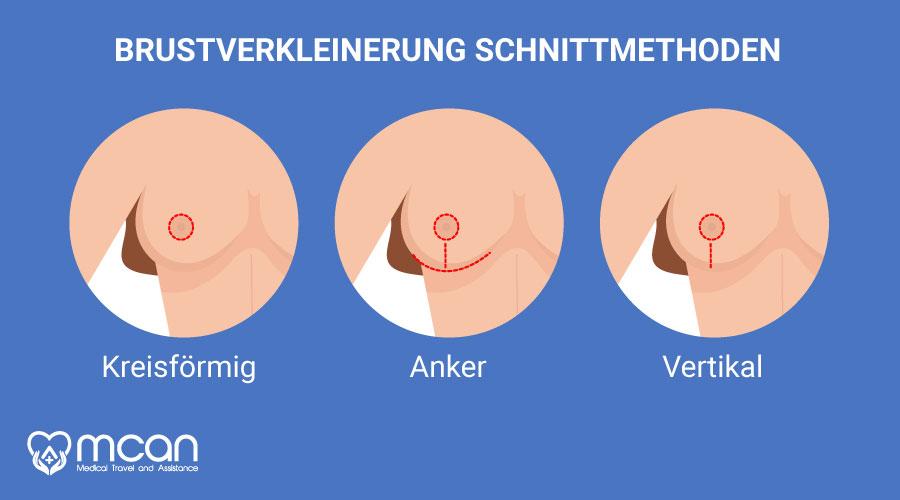brustverkleinerung-turkei-schnittmethoden