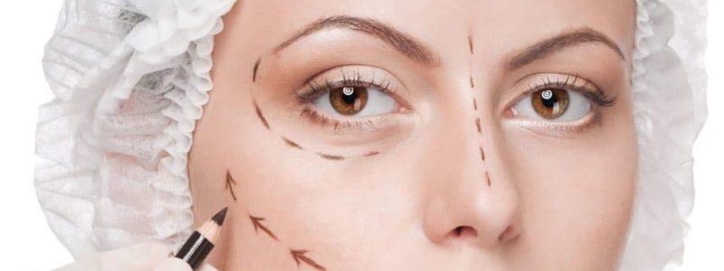 Facelift (Rhytidectomy) Turkey | MCAN Health