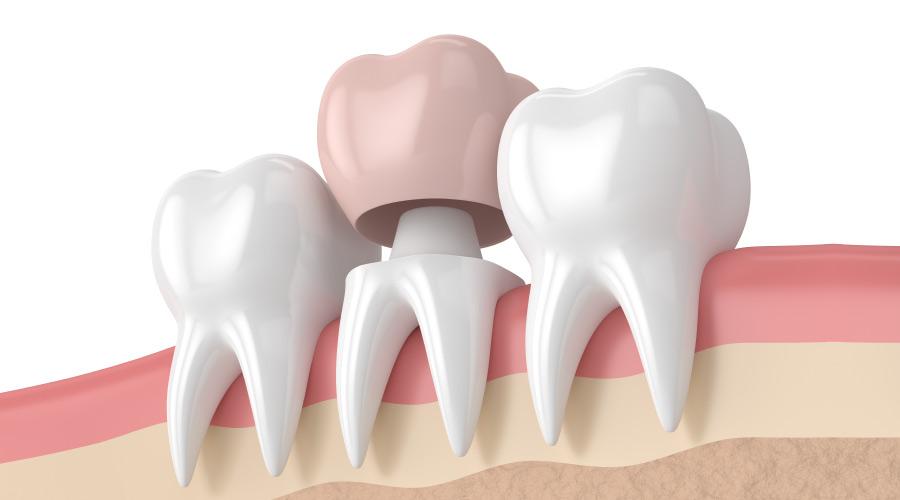 Dental Crowns (Tooth Crowns) in Turkey