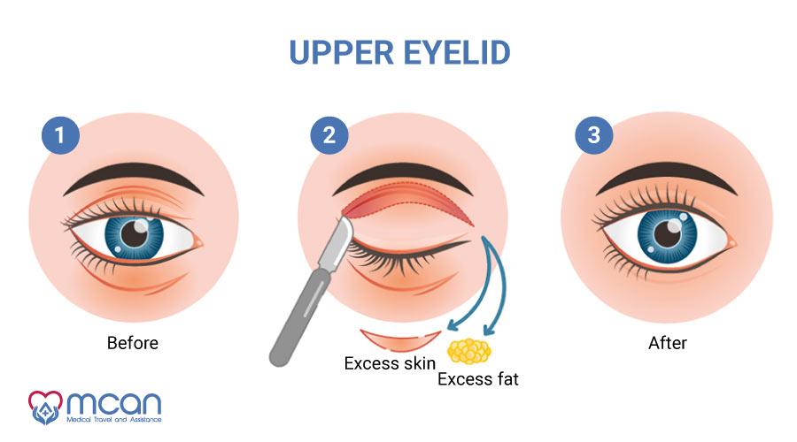 Upper Blepharoplasty in Turkey