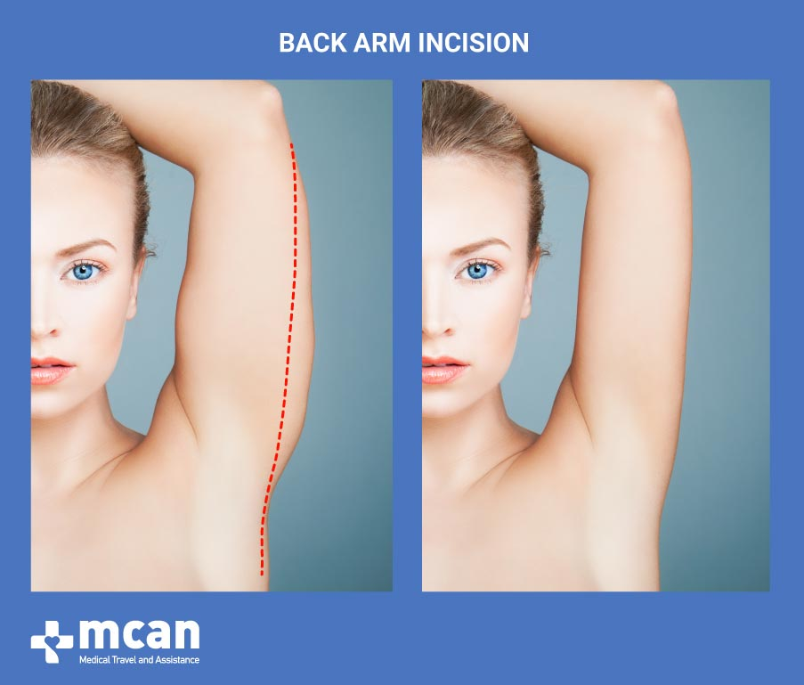 Arm Lift in Turkey-Back Arm Incision