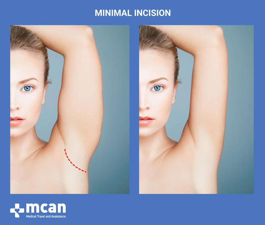 Arm Lift in Turkey-Minimal Incision