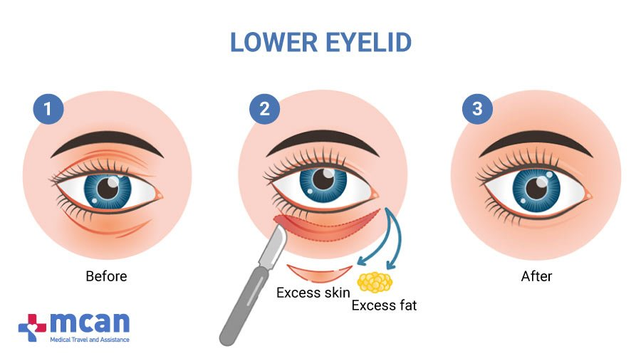 Blepharoplasty in Turkey MCAN Health-Lower Eyelid