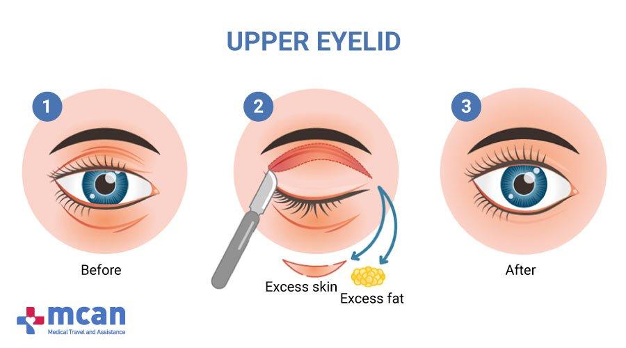 Blepharoplasty in Turkey MCAN Health-Upper Eyelid