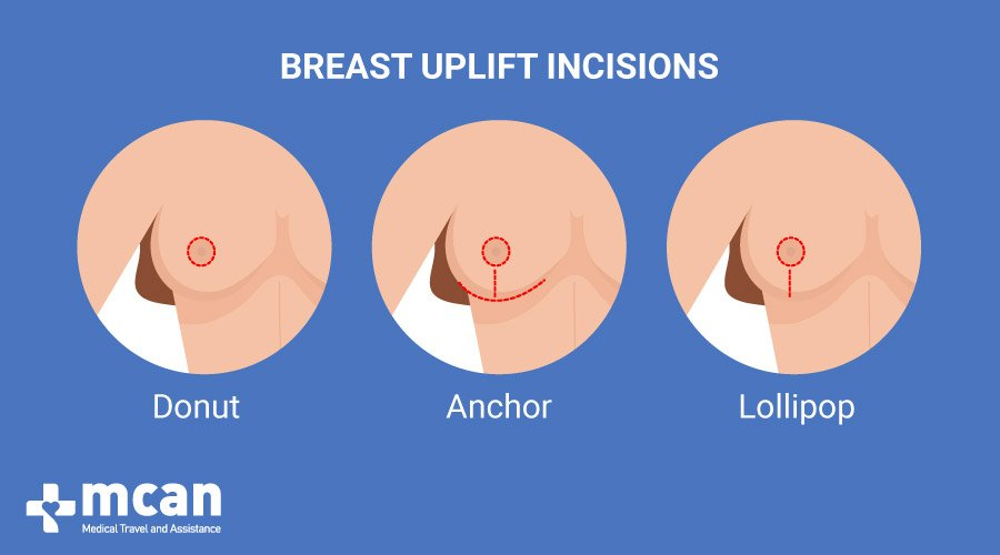 Breast Uplift in Turkey MCAN Health Incisions