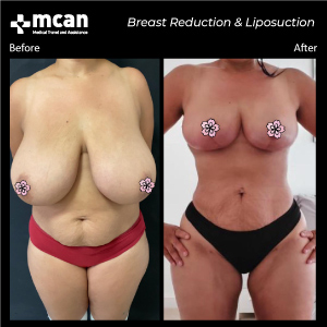Breast and Liposuction in Turkey Before After MCAN Health