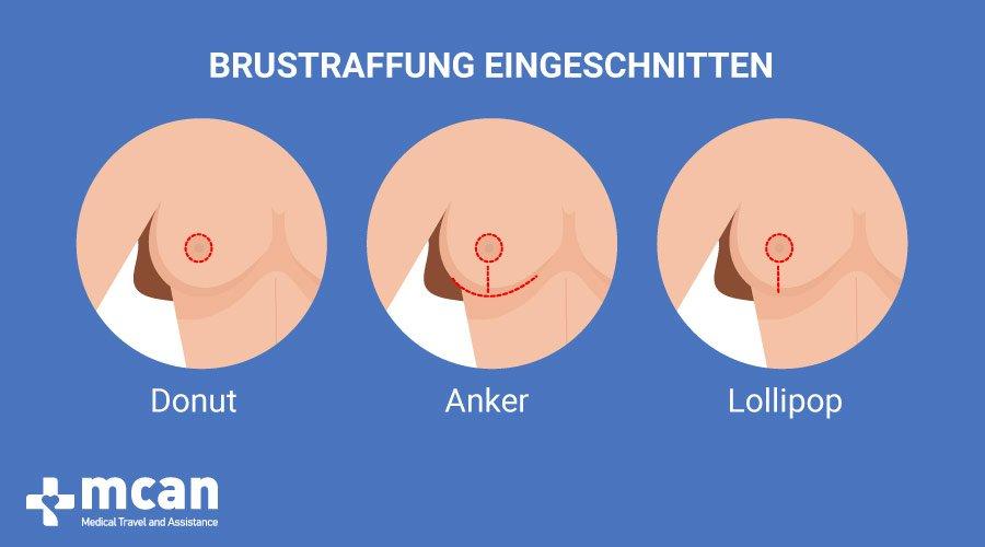Bruststraffung in der Türkei MCAN Health