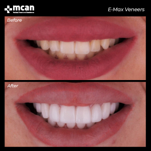 Dentistry in Turkey Before After MCAN Health