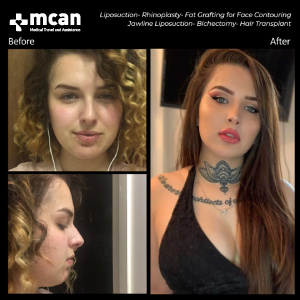 Face Before After MCAN Health