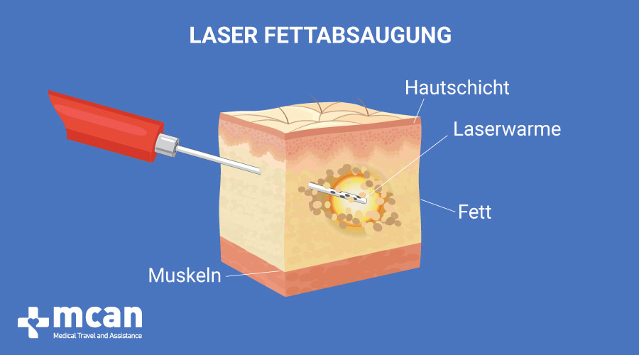Fettabsaugung Turkey laser liposuction