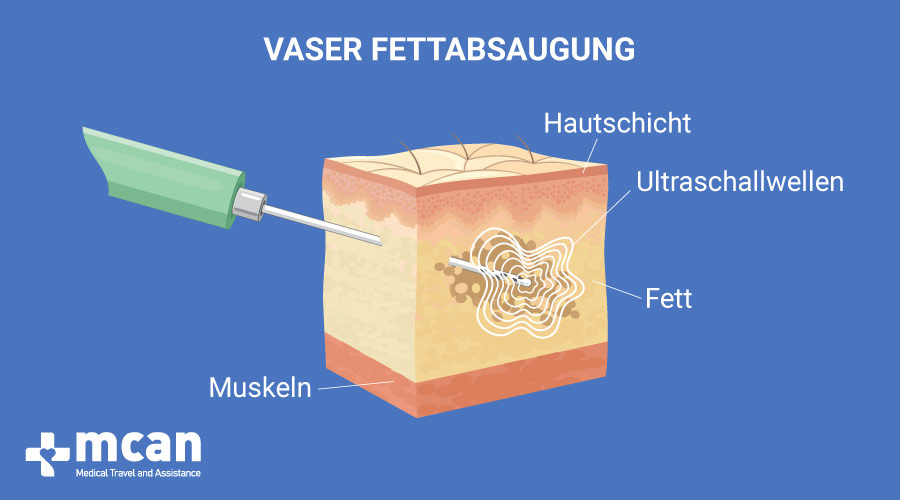 Fettabsaugung Turkey vaser liposuction