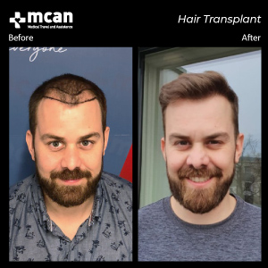 Hair Transplant in Turkey Before After 02 MCAN Health