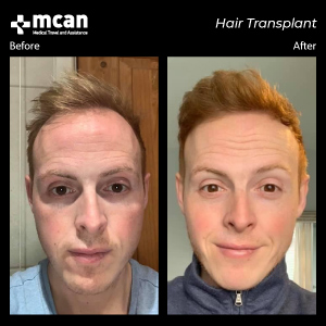Hair Transplant in Turkey Before After MCAN Health