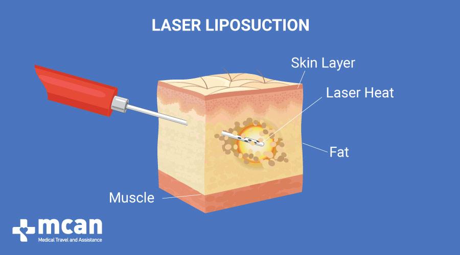 Laser Liposuction in Turkey