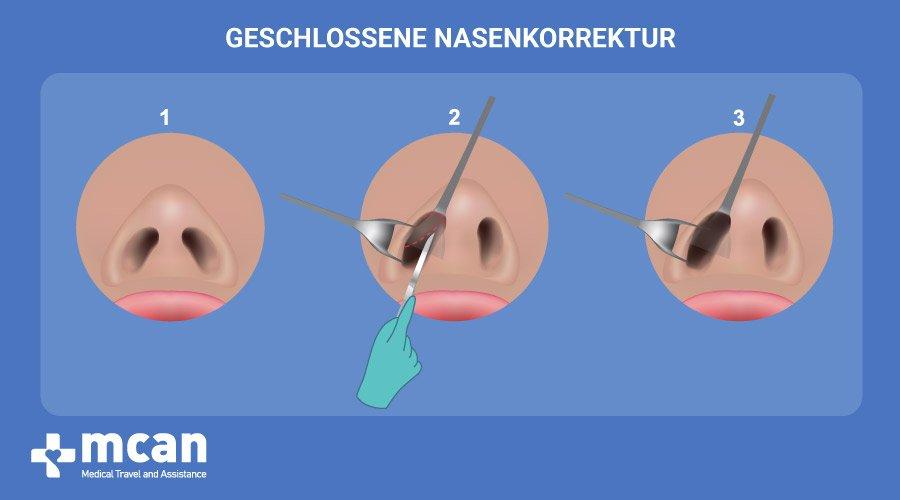 MCAN Health Nasenoperation Türkei eschlossene Nasenkorrektur