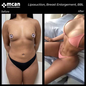 Plastic Surgery in Turkey Before After MCAN Health