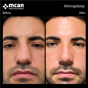 Rhinoplasty in Turkey Before After MCAN Health