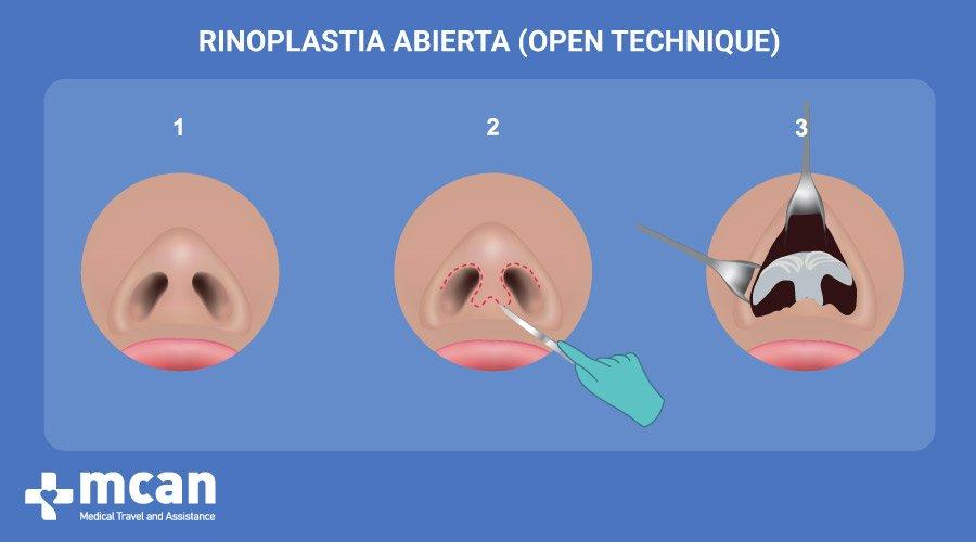 Rinoplastia en Turquía- Rinoplastia Abierta MCAN Health