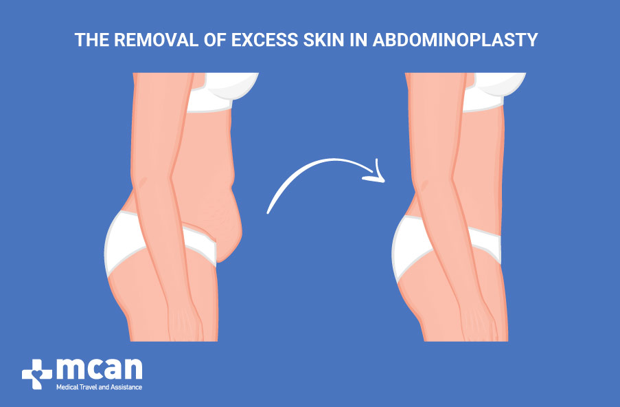 The removal of excess skin in Abdominoplasty turkey
