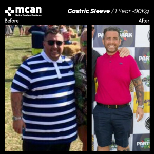 Weightloss in Turkey Before After MCAN Health