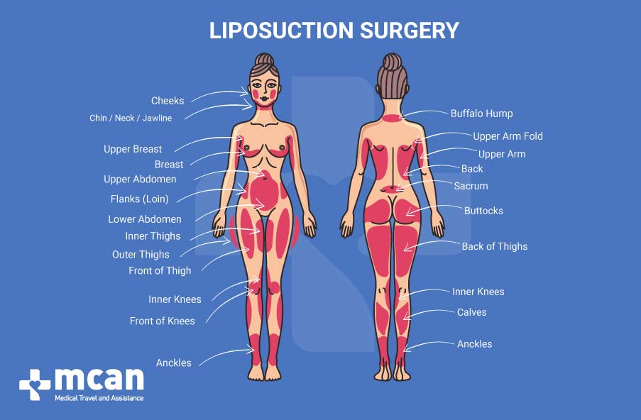 Where On The Body Liposuction Can Be Performed
