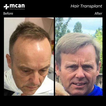 hair transplant turkey mcan health