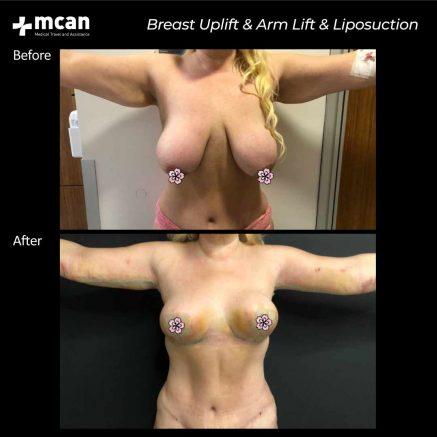 plastic surgery turkey mcan health 02