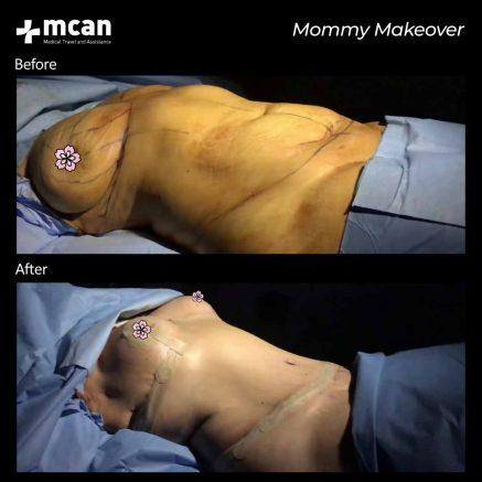 plastic surgery turkey mcan health 03