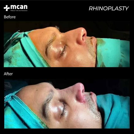 plastic surgery turkey mcan health 06