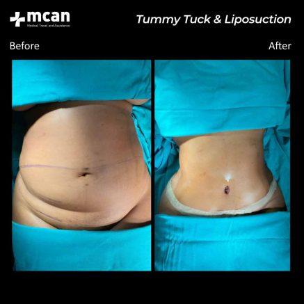 plastic surgery turkey mcan health 07
