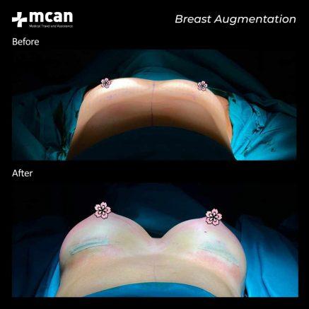 plastic surgery turkey mcan health 08