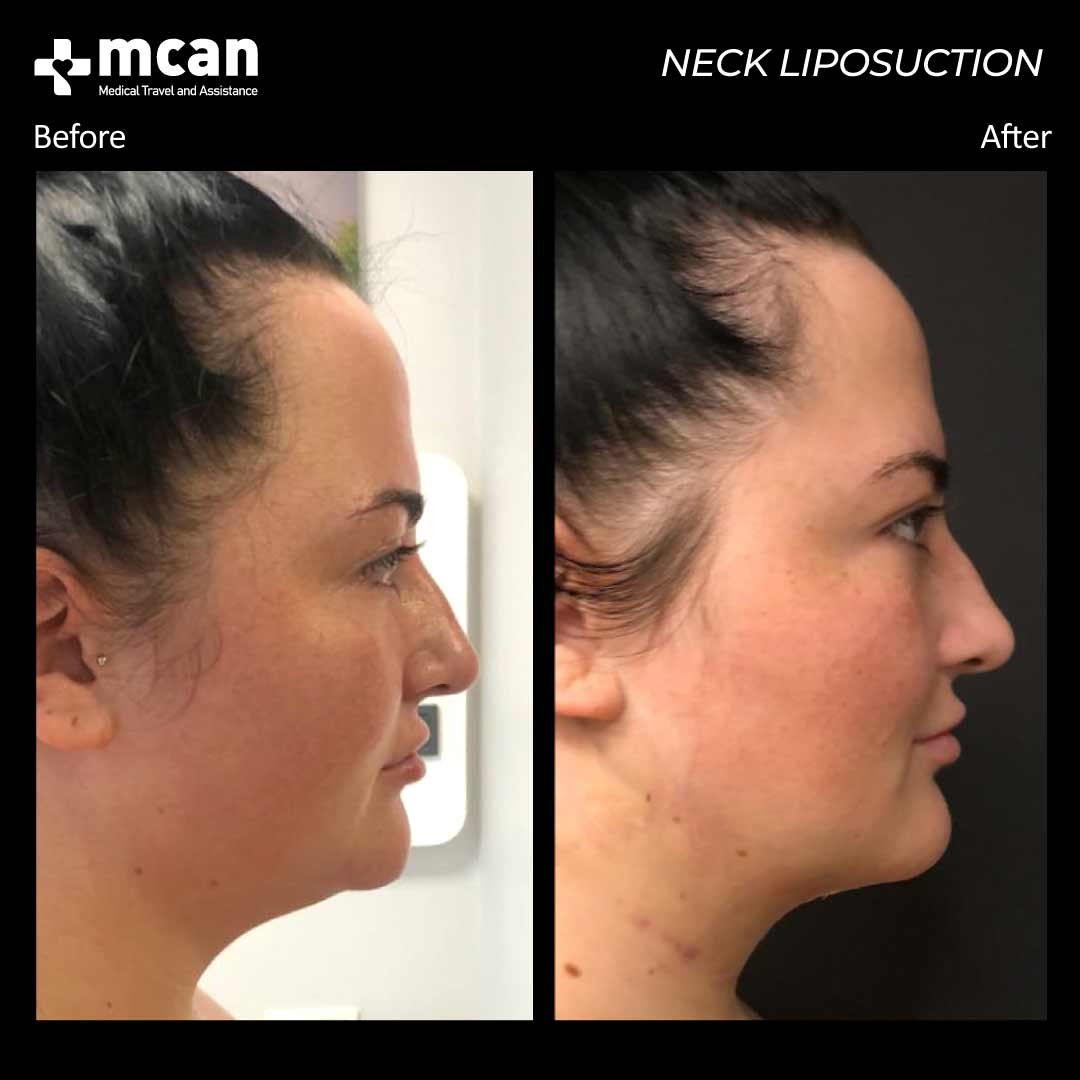 neck liposuction in turkey