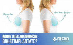 Runde oder anatomische Brustimplantate