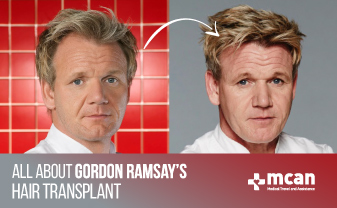 All About Gordon Ramsay's Hair Transplant