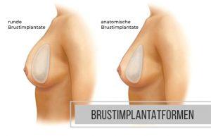 Brustimplantatformen