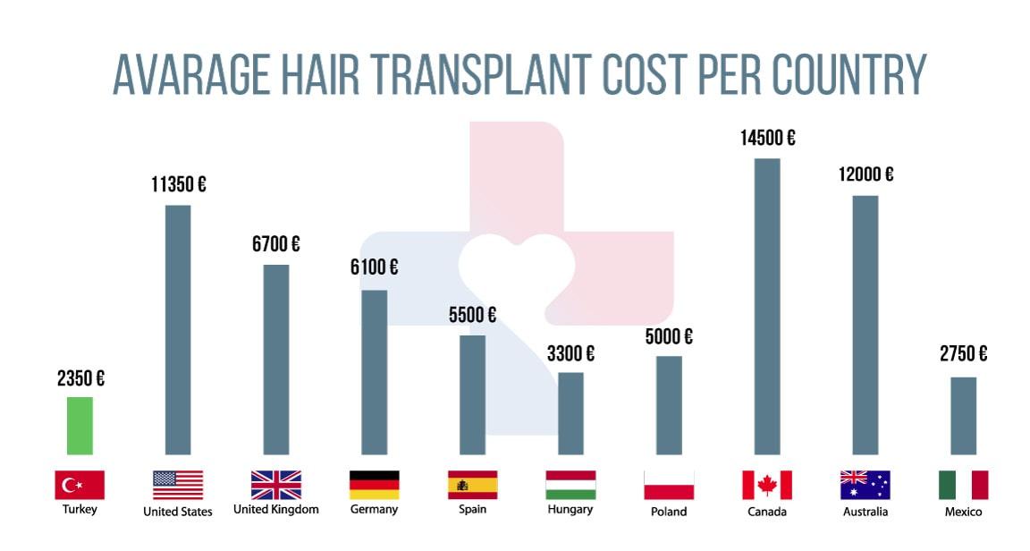 hair transplant in the uk vs. turkey: price differences