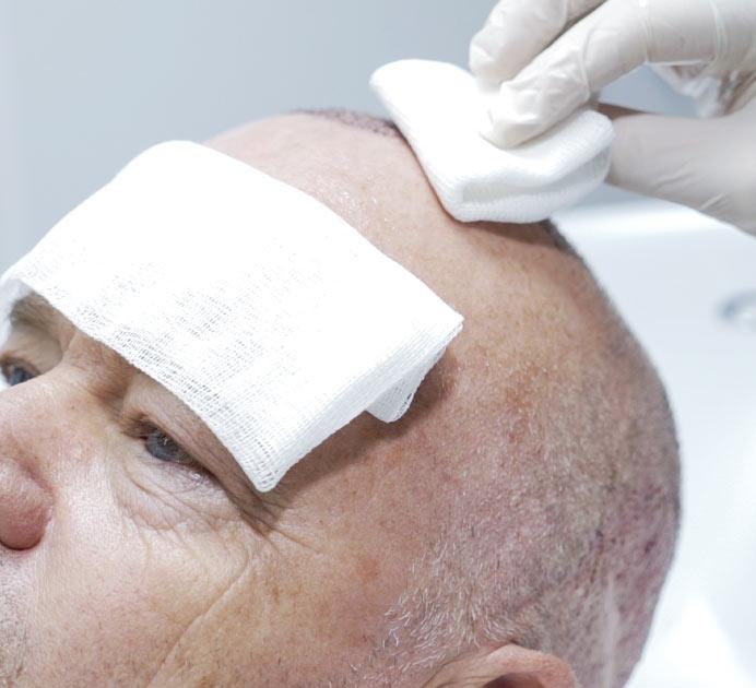 hair transplant in turkey post operation instructions
