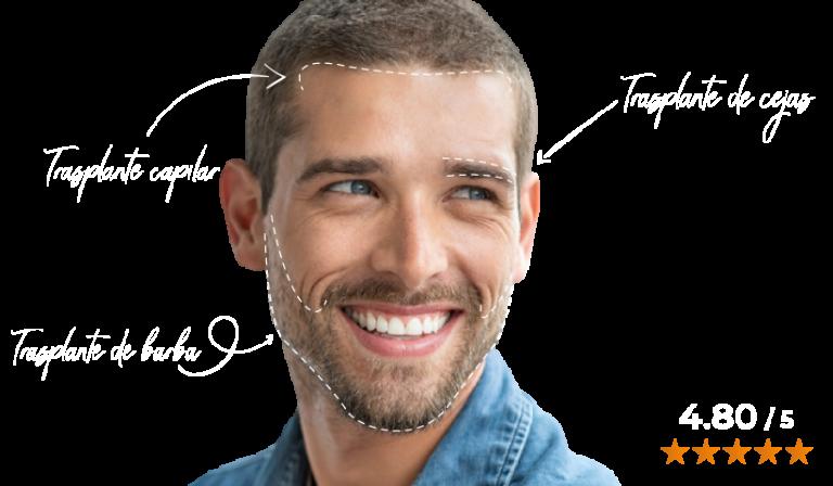 transplante capilar en turquia