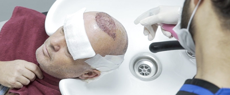 washing your hair after hair transplant