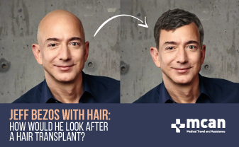 Jeff Bezos with hair: how he would look after a hair transplant?