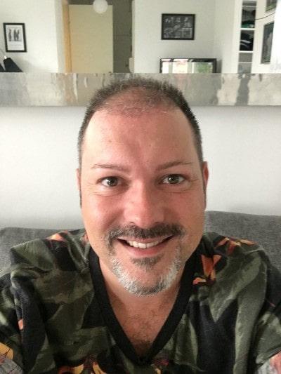 2 meses después del implante capilar   MCAN Health Turquía