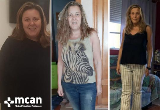 Antes y después de la reducción de estómago   MCAN Health