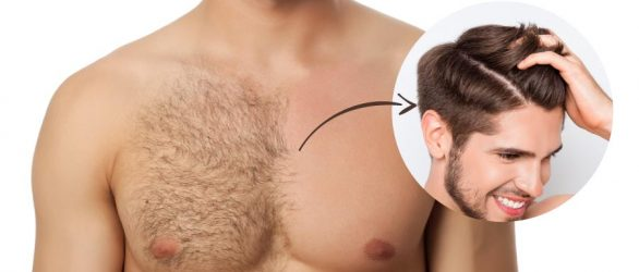 Body Hair To Head Transplant in Turkey