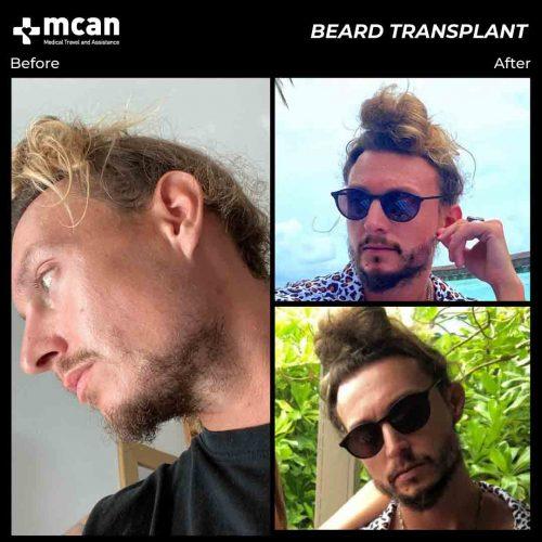Dan-beard-transplant-in-turkey