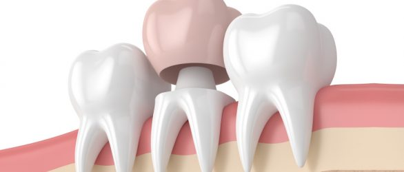 Dental Crowns (Tooth Crowns) in Turkey